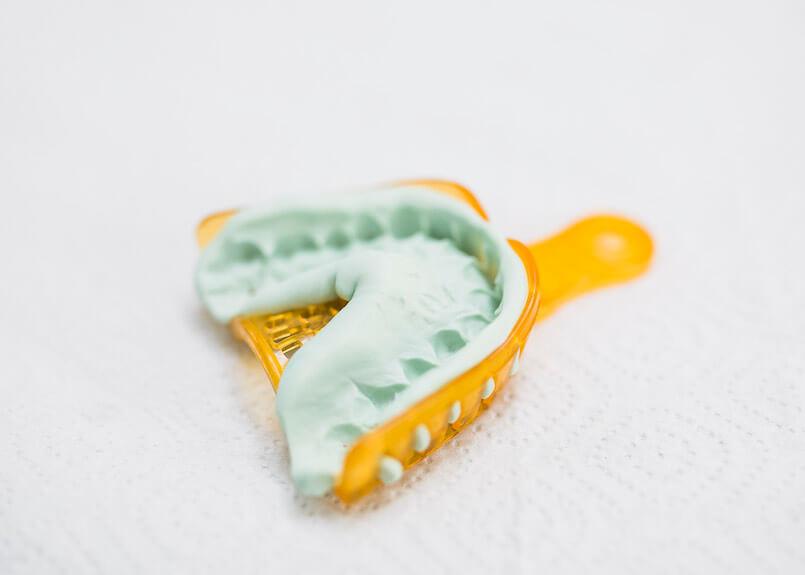 Abdrücke von Zähnen