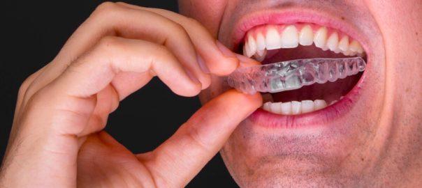 Bruxismus: Wie schädlich ist das Zähneknirschen wirklich?