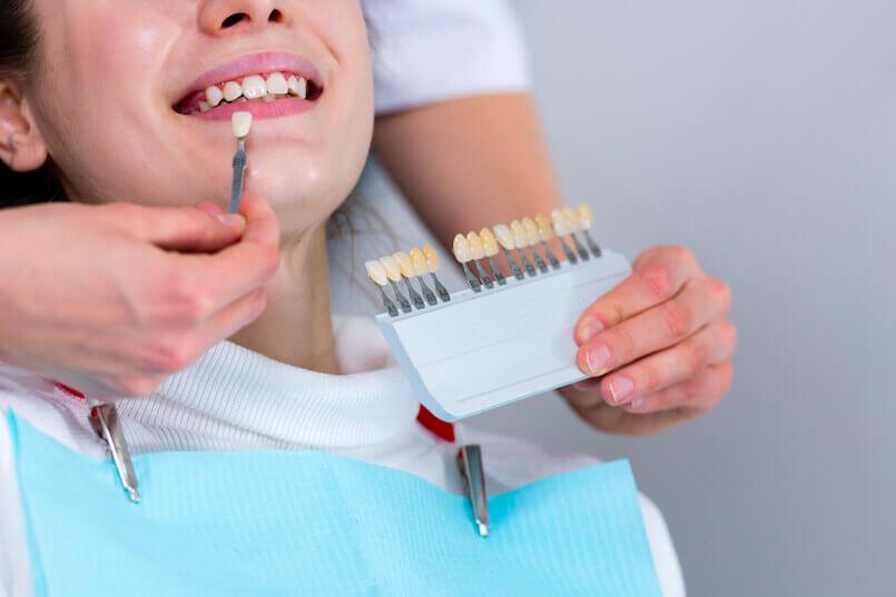 Mit dem Zahnarzt bestimmen Sie die Zielfarbe