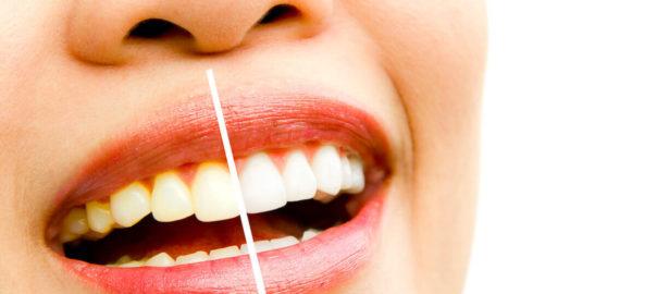 Weiße Zähne - 2 Wege für strahlendes Weiß
